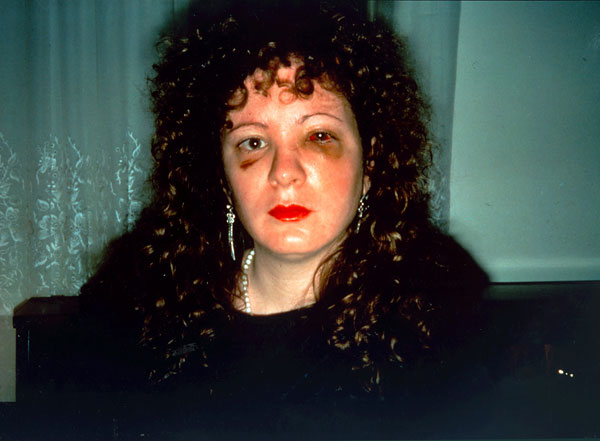 Foto Nan Goldin: Nan one month after being battered, 1984