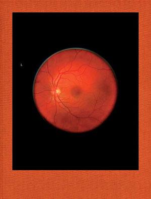 Titel Mikhael Subotzky – Retinal Shift
